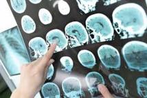 Un traitement à haut risque pourrait stopper la sclérose en plaques