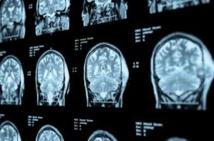 Un haut niveau d'études serait associé à un risque accru de tumeurs du cerveau