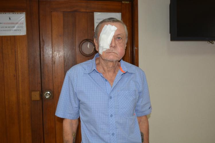 La victime est sortie de l'hopital aujourd'hui, son visage porte les marques de coups très violents.