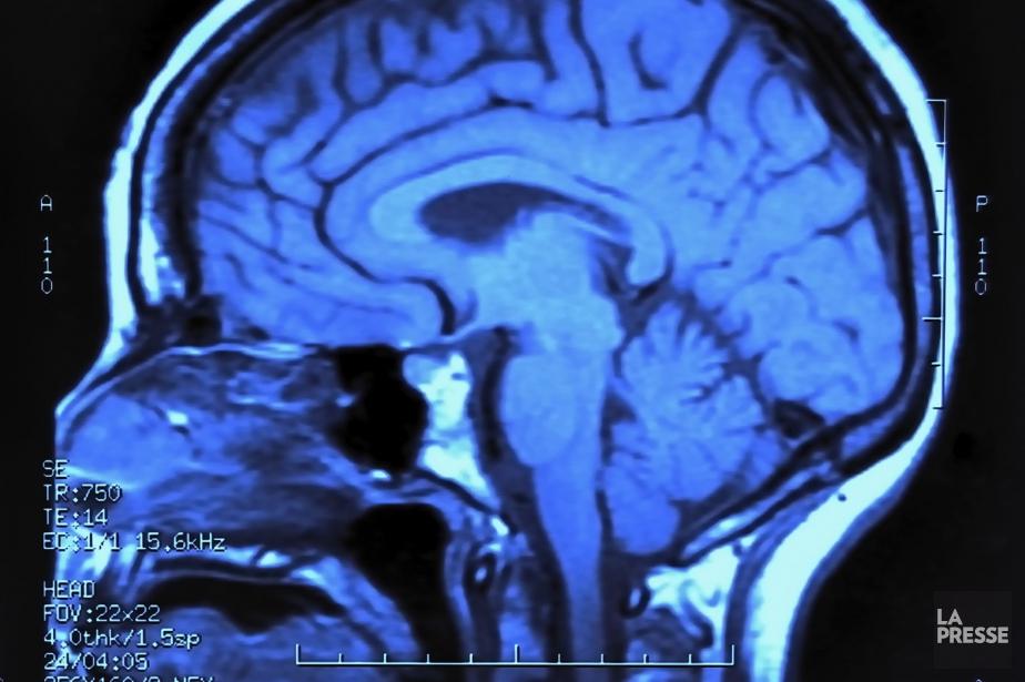 Des recherches sur la connexion entre l'oeil et le cerveau primées à Lisbonne