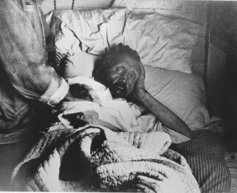 Le père Damien sur son lit de mort, amaigri, épuisé, son oreille droite rongée par la lèpre. Il sait qu'il ne se relèvera plus. Il a 49 ans et semble à la fois terrorisé et affligé.