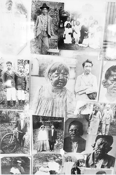 Emouvant montage de vieilles photos d'enfants lépreux de Kalawao et de Kalaupapa ; la lèpre avait fait son apparition vers 1820 à Hawaii, amenée par des travailleurs chinois. Les plus touchés furent les indigènes hawaiiens.