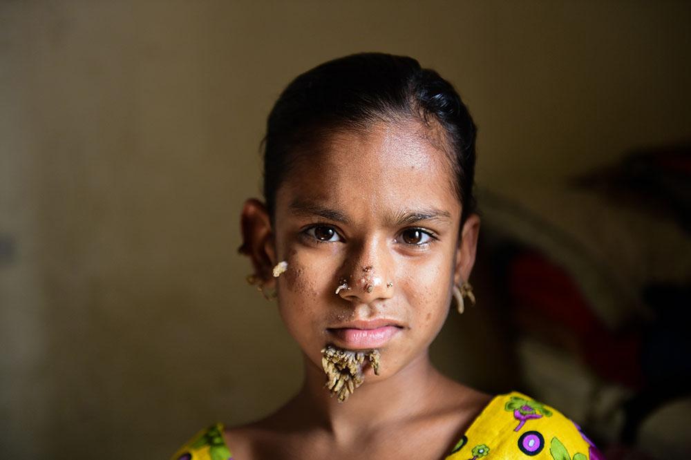 """Bangladesh: opération réussie pour la """"fille-arbre"""""""