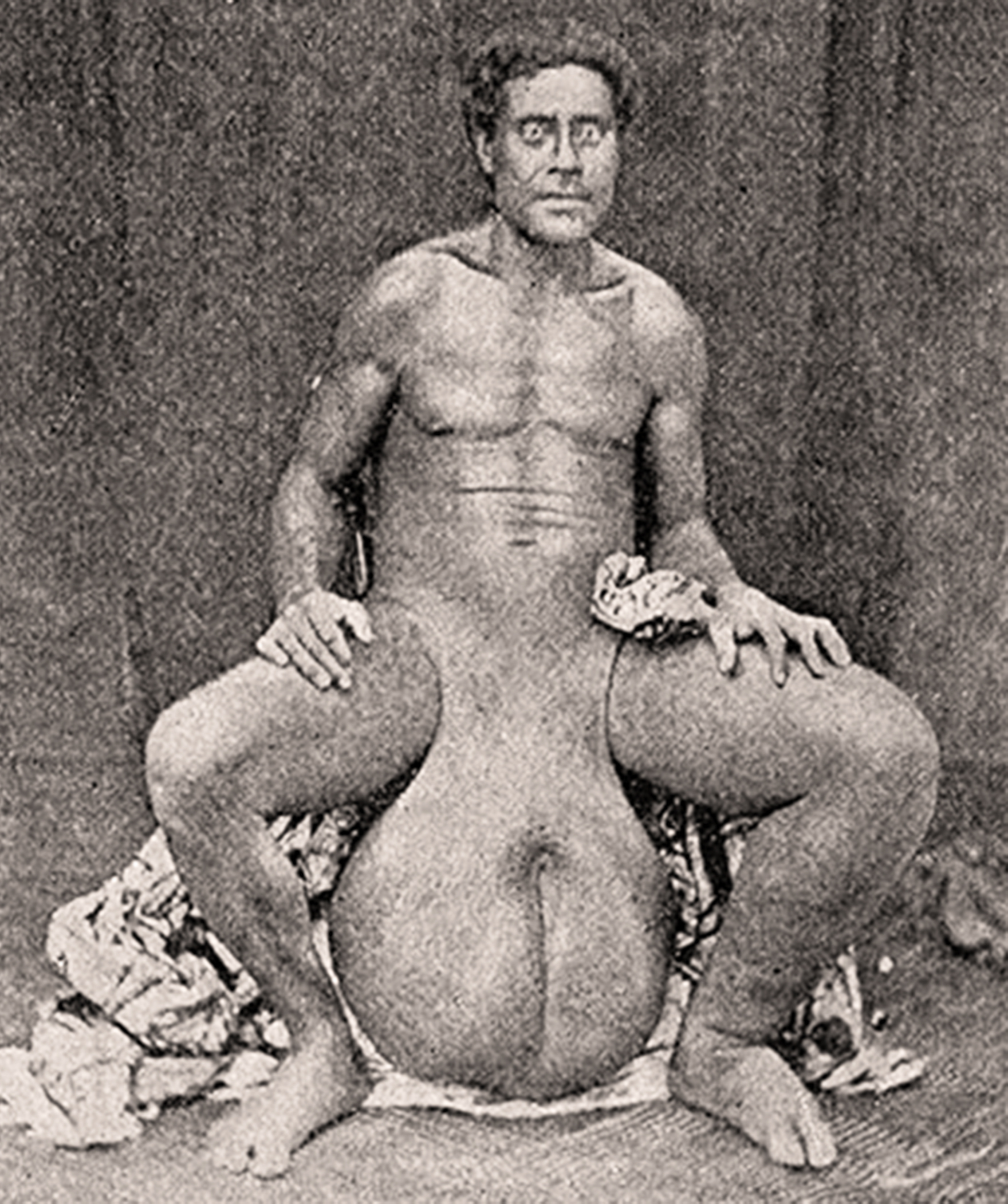 Tuméfaction du scrotum, Tahiti vers 1900