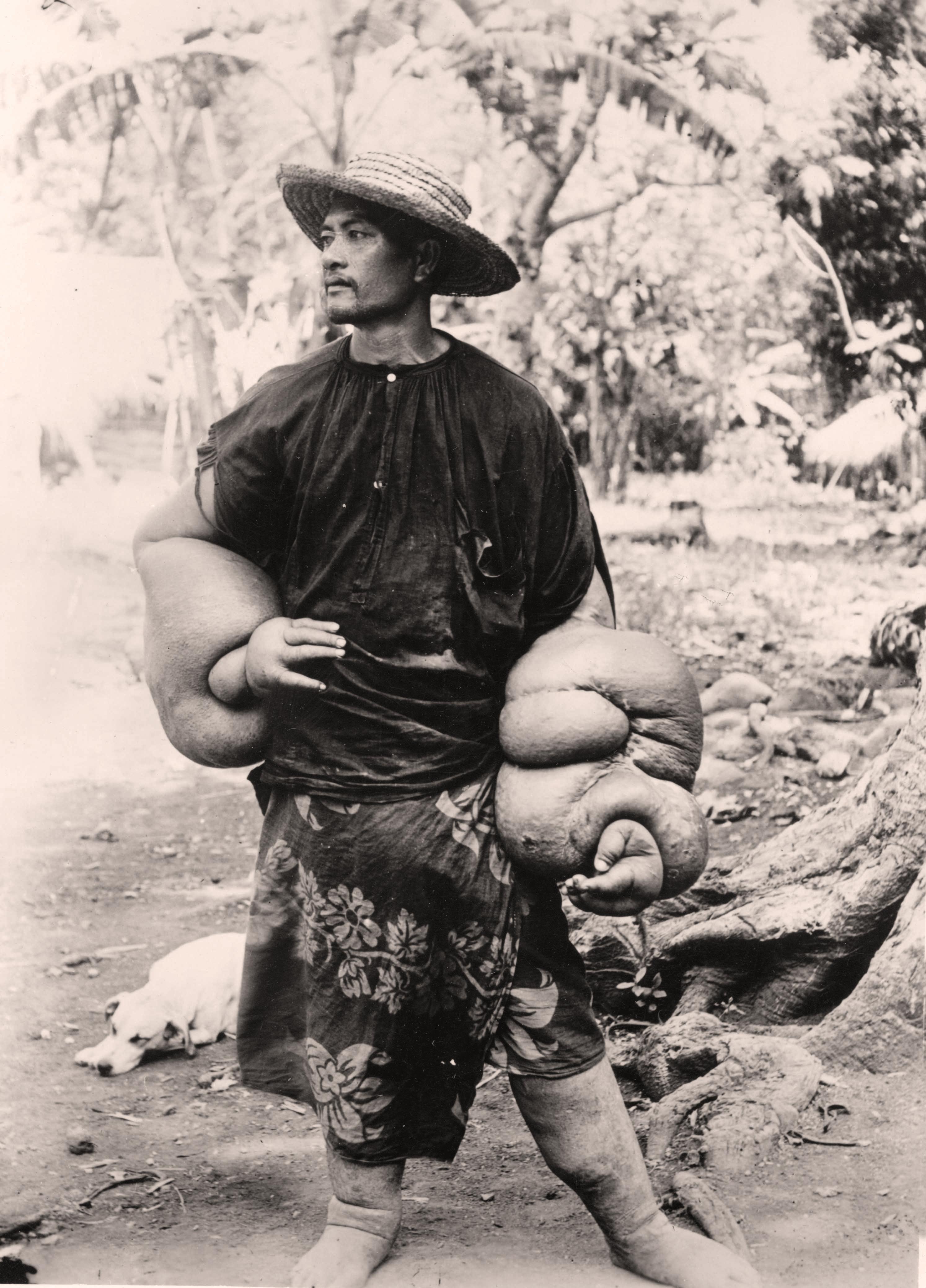 Cas d'éléphantiasis des bras, Tahiti vers 1950
