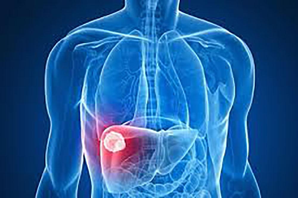 325 millions de personnes touchées par l'hépatite (OMS)