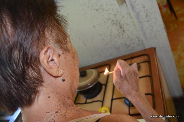 Insensibles à la douleur, les lépreux ne sentent pas quand ils se brûlent.