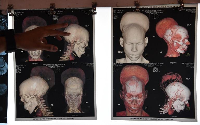 Une tumeur au cerveau record opérée en Inde