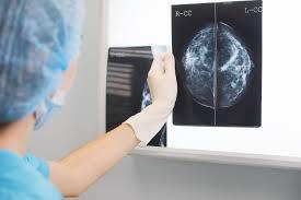 GB: une erreur dans le dépistage du cancer du sein aurait écourté 270 vies