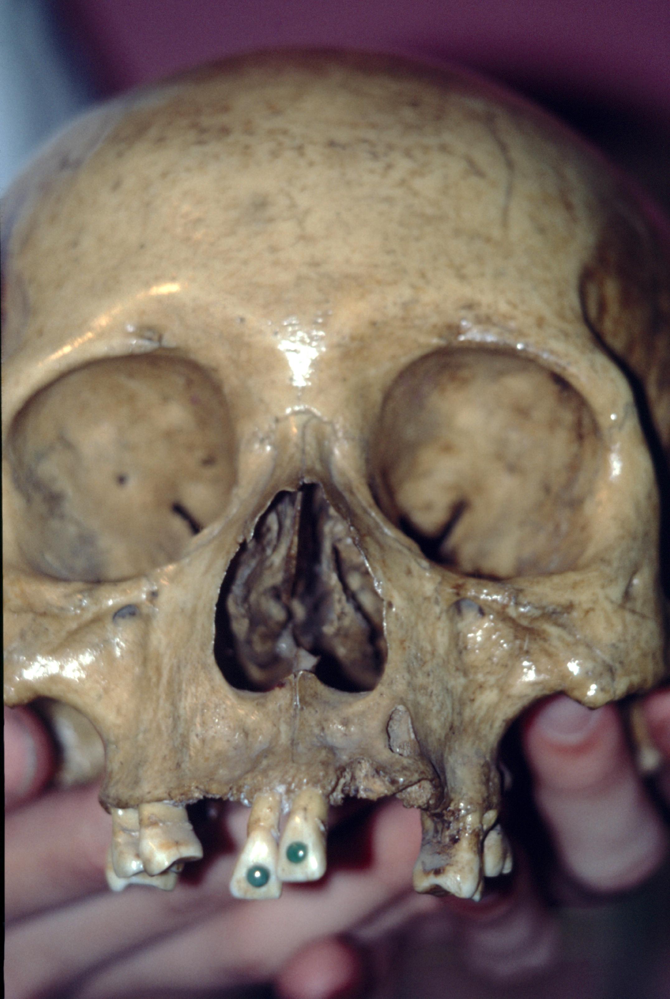 Une pièce exceptionnelle, un crâne de cacique Maya ; par vénération pour le jade, il s'était fait incruster de son vivant deux perles de jade sur les incisives. Sans dentiste !