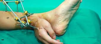 La main d'un Chinois greffée provisoirement sur sa jambe avant de retrouver son poignet