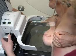 Cancer du sein: une nouvelle étude relance la polémique sur les mammographies