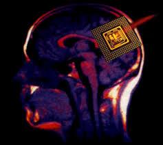 Progrès vers un implant dans le cerveau pour restaurer la mémoire