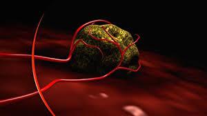 USA: un cancer guéri par une dose massive de virus modifiés de la rougeole