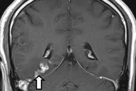 GB: un ver dans le cerveau à l'origine des maux de tête d'un patient