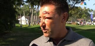 PGA - L'Australien Allenby battu et volé à Hawaï