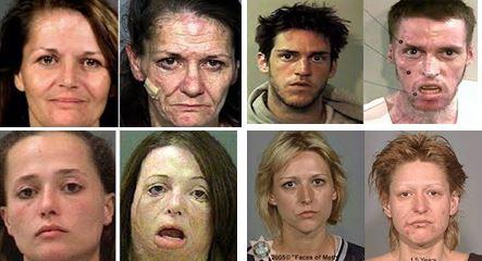 """Quelques exemples de photos """"avant-après"""" pour rappeler les dégats que peut provoquer la prise d''ecstasie"""