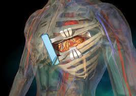 Le pontage coronarien meilleure option dans certains cas que l'angioplastie