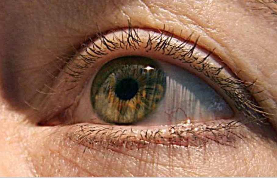 De l'astuce et du basilic pour extraire une larve de l'œil d'un Péruvien