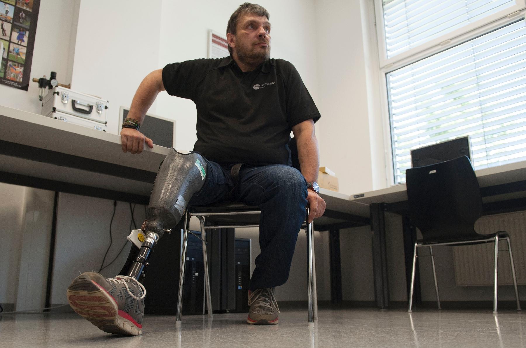 """Une prothèse """"sensible"""" pour changer le quotidien des amputés"""