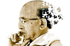 Un traitement expérimental contre Alzheimer donne des résultats prometteurs