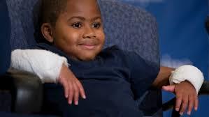 Un enfant de huit ans devient le plus jeune greffé des deux mains