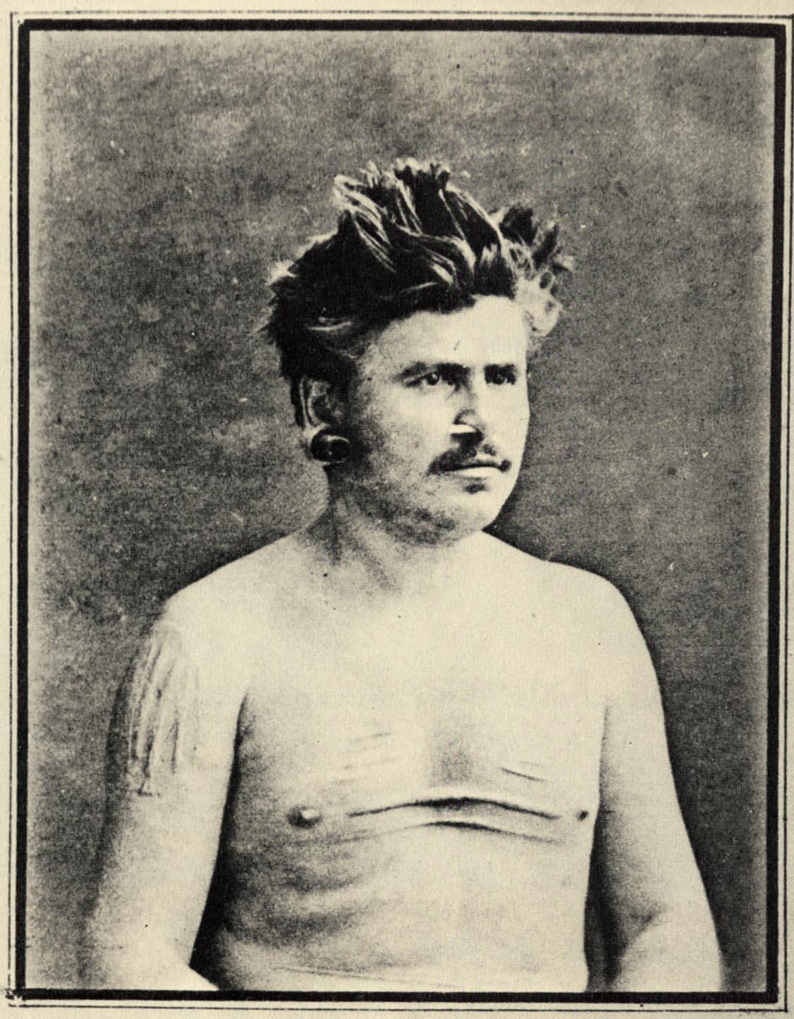 1 Narcisse Pelletier à son retour en France : il portait des scarifications sur le torse et les bras ; son nez et ses oreilles étaient largement percées.