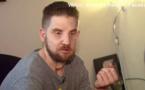 """USA : un pompier ayant reçu une greffe du visage il y a un an se sent """"normal"""""""