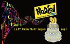La FM 100 (Radio1) fête son 30ème anniversaire
