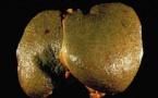 La cirrhose du foie, mal connue des Français