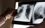 Une fillette atteinte de tuberculose à Mahina