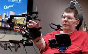 Totalement paralysé, il réussit à se servir de son bras grâce à des implants cérébraux