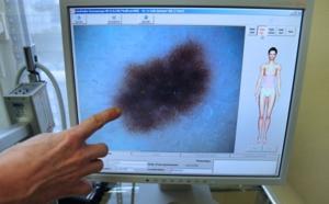Australie: des chercheurs développent un test sanguin pour détecter le mélanome